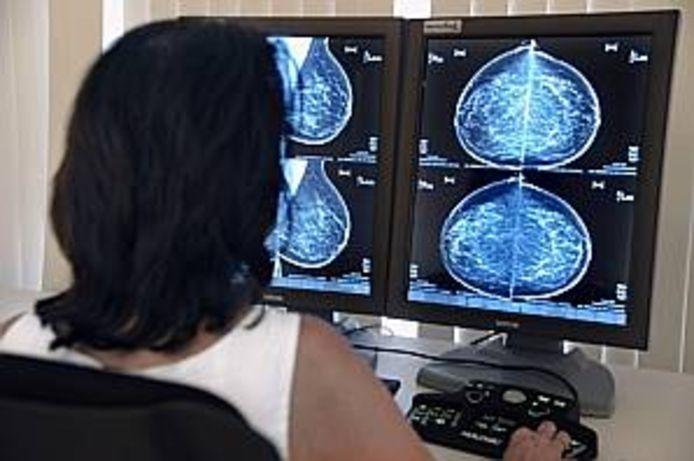 Een mammografie.