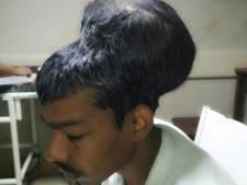 Indiase dokters verwijderen 'grootste hersentumor ter wereld'