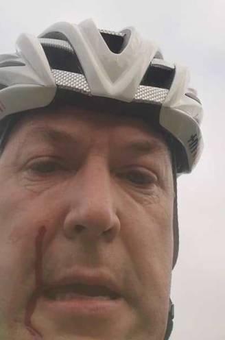 """Bart (45) geraakt door hagel: """"Heb niks tegen jagers, maar in de buurt van druk fietspad is dit onverantwoord"""""""