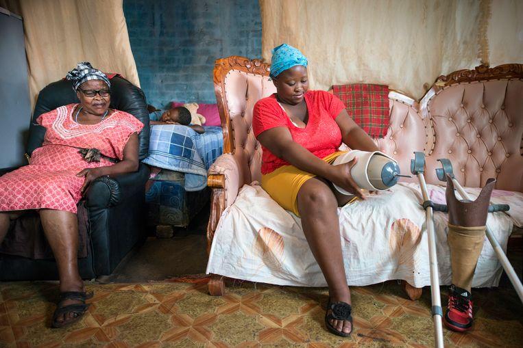 Haar moeder kijkt hoe Christina Tshole de beenprothese aantrekt. Haar zoontje doet een dutje. Beeld Bram Lammers