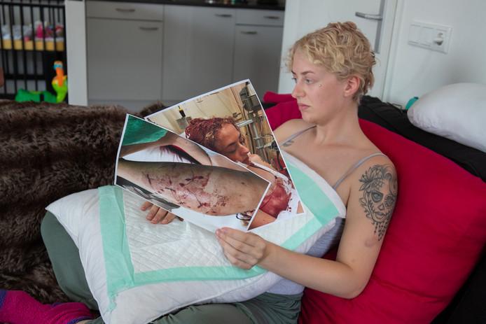 De zwangere Marissa de Lange (20) uit Kampen werd afgelopen zomer aangevallen door een Amerikaanse staffordshireterriër. De hond Royce wordt afgemaakt.