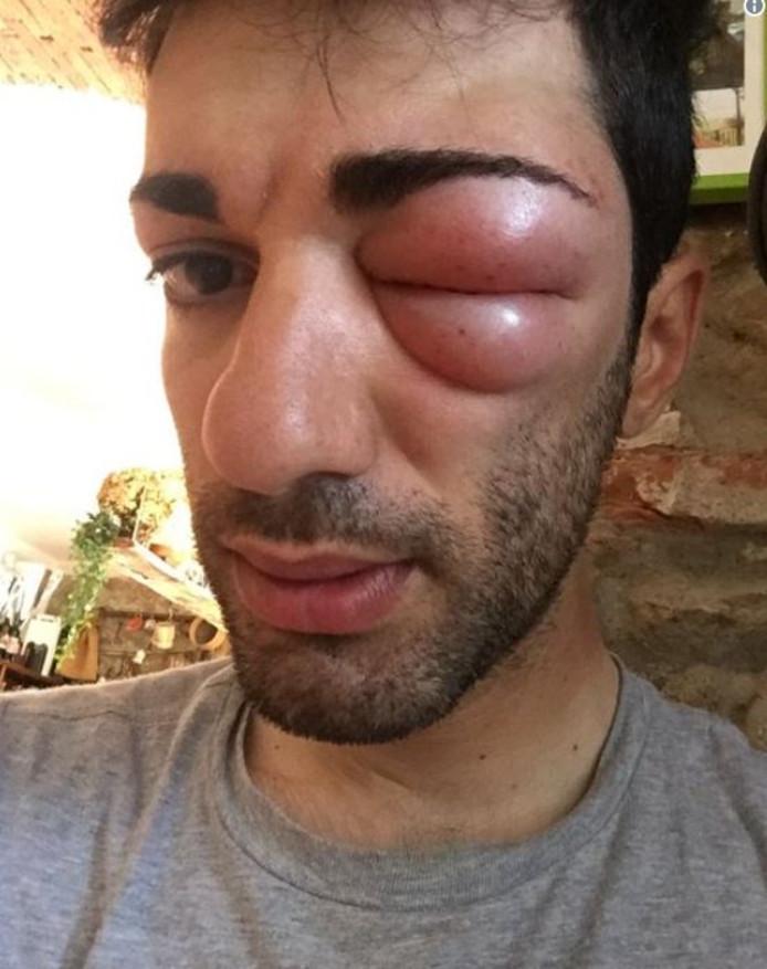 Het gezwollen oog van Danilo Celano.