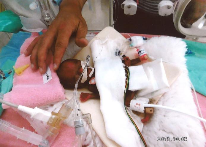 De piepkleine Ryusuke Sekiya vlak na zijn geboorte in oktober.