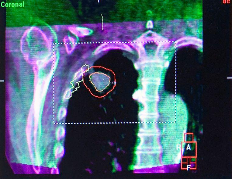 Dankzij de door Van Herk ontwikkelde Conebeam CT kan een longtumor ook tijdens het in- en uitademen precies worden gelokaliseerd. Beeld Hollandse Hoogte / Frank Muller