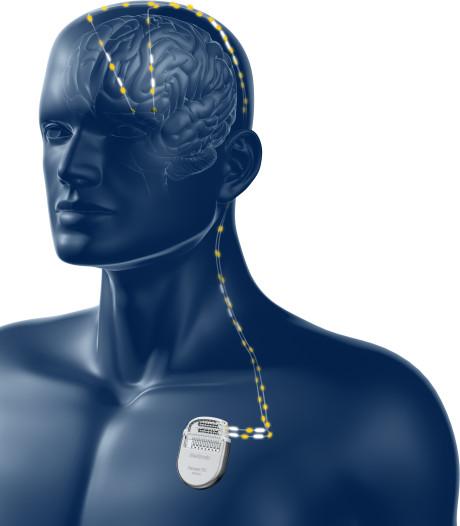 Primeur ETZ met implantaat: 'Dit verbetert  behandeling van Parkinson-patiënten'