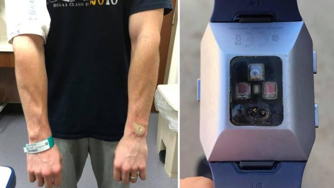 """""""Hij leek door mijn arm te smelten"""": man omschrijft hoe hij zware brandwonden opliep door Fitbit"""