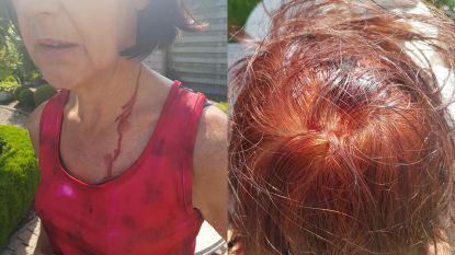 Agressieve buizerd van Stropersbos maakt nieuw slachtoffer