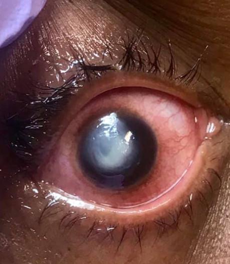 Ce que vous risquez en dormant avec des lentilles de contact
