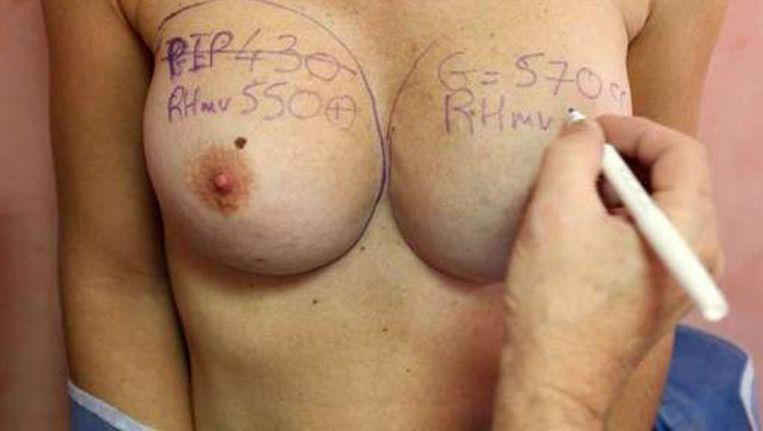 De PIP-implantaten leidden eind 2011 tot veel onrust onder vrouwen. Beeld afp