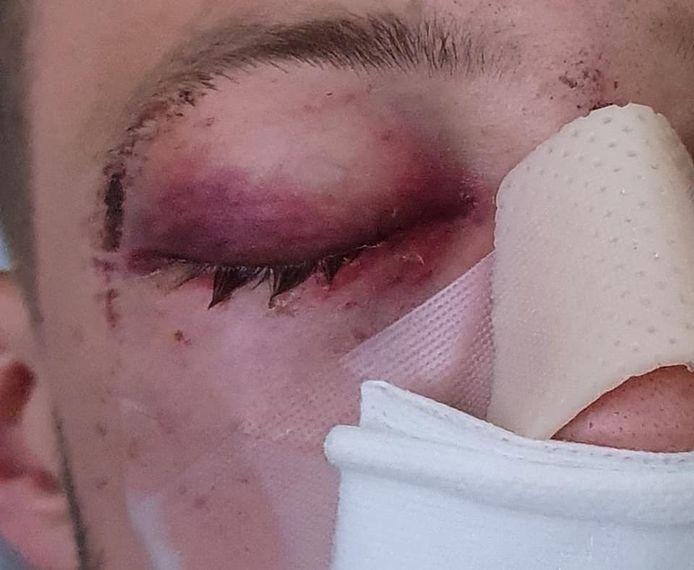 Raymond werd letterlijk het ziekenhuis in geslagen.