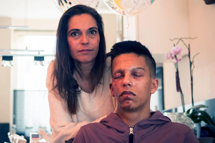 Jordan van Beem (16) raakte gewond. Zijn moeder Jacqueline van Beem deelde het verhaal op Facebook om anderen te waarschuwen bij vuur niet zelf in te grijpen.