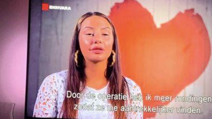 """TV-kijkers in de ban van botoxmeisje: """"Ze krijgt haar ogen amper open"""""""
