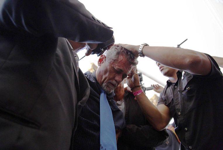Oppositiepoliticus Americo De Grazia nadat hij werd aangevallen door aanhangers van president Maduro Beeld afp