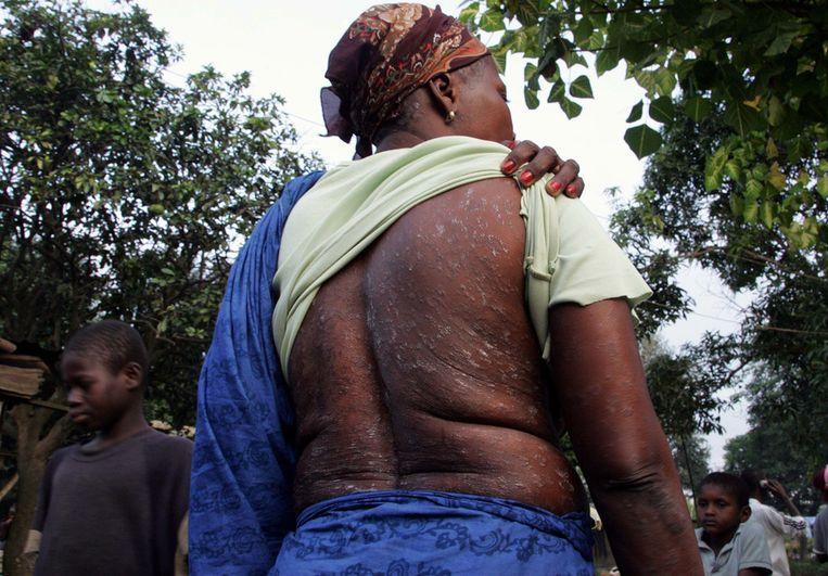 Inwoners van het nabij het afval gedumpte dorp Djibi village claimen dat het giftige afval bij velen van hen huidproblemen heeft veroorzaakt. ©ANP Beeld