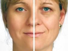Plastische chirurgie laat je 7 jaar jonger lijken
