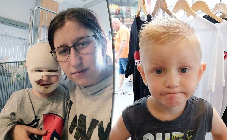 Bianca Ghijs met zoontje Lander vlak na het ongeval, en Lander vandaag.
