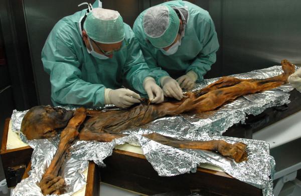 **Het laatste maal van Europa's beroemdste mummie blijkt behoorlijk vet te zijn geweest**
