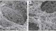 Onderzoekers ontdekken belangrijke verandering in longbloedvaten bij Covid-19
