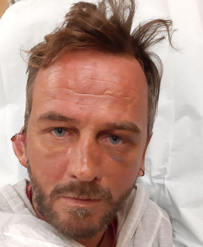 Het grootste deel van de oorschelp van Thijs Wortmann is afgebeten. De man werd aangevallen tijdens het uitgaan.