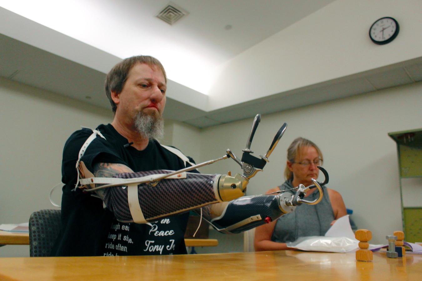 Manteufel oefent met een handprothese.