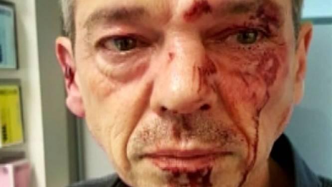 Hasseltse horecabaas krijgt ruim 7.000 euro na slagen van agressieve bestuurder