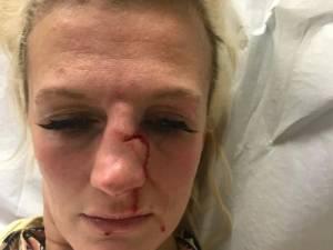 """Une star belge de la MMA violemment agressée par son ex-compagnon: """"Une cicatrice pour la vie"""""""