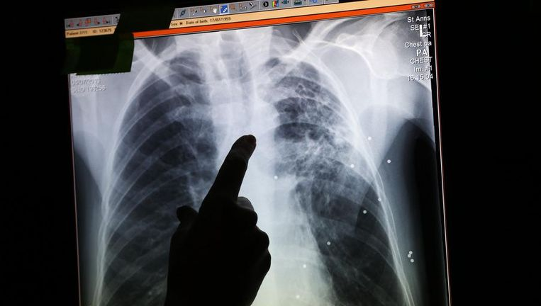 Een foto van longen die met tuberculose besmet zijn (Illustratiebeeld).