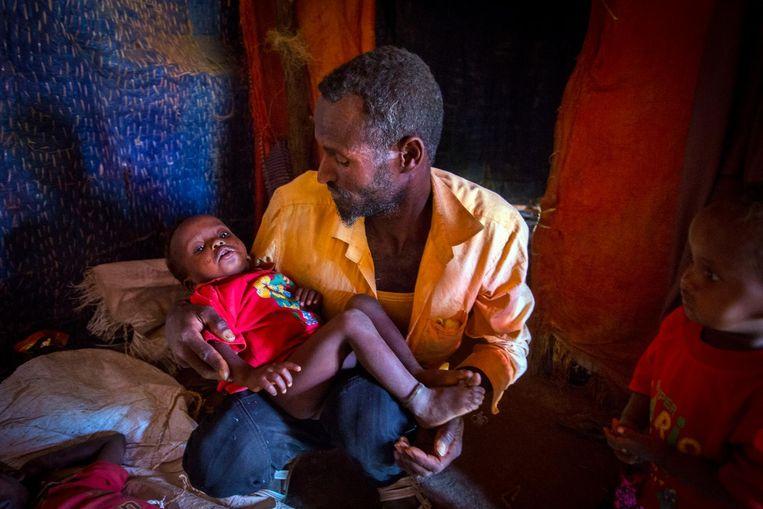 In Somalië zijn vele miljoenen mensen die honger hebben en vele honderdduizenden kinderen die ernstig ondervoed zijn. Door aanhoudende droogte zijn oogsten mislukt en sterven kuddes vee. Beeld anp