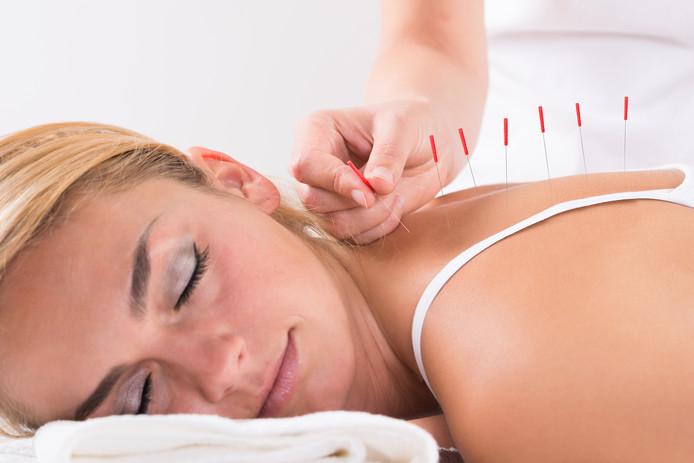 Onder meer acupunctuur en dry needling zijn geneeswijzen die worden toegepast in een nieuw gezondheidscentrum in het Nijmeegse Dukenburg.