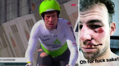Cavendish komt zwaar ten val in ploegentijdrit en moet Tirreno-Adriatico al verlaten