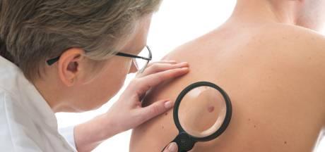Overlevingskansen bij ernstige huidkanker sterk verbeterd
