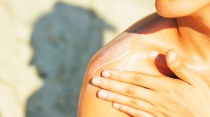 Preventieweek voor huidkanker: advies dat niet genegeerd mag worden