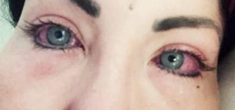 Instagram-model bijna blind na operatie met gekleurde oogimplantaten