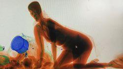 Vrouw kruipt door röntgenscanner om zeker te zijn dat haar tas niet wordt gestolen