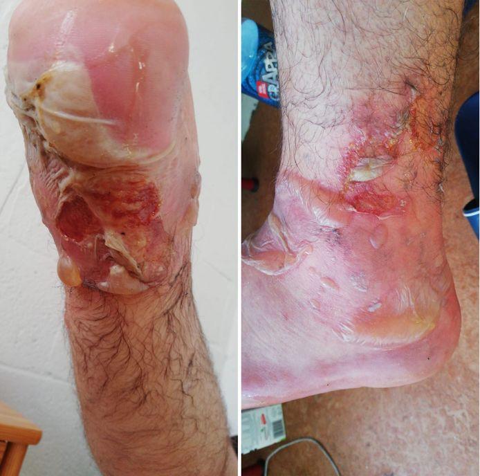 Huisgenote Iwona maakte deze foto's van de verwondingen van Marcin.