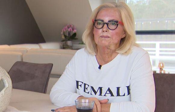 Marina Tijssen, slachtoffer van de zuurgooier, moet 5 jaar na de aanval nog steeds met pijn leven.