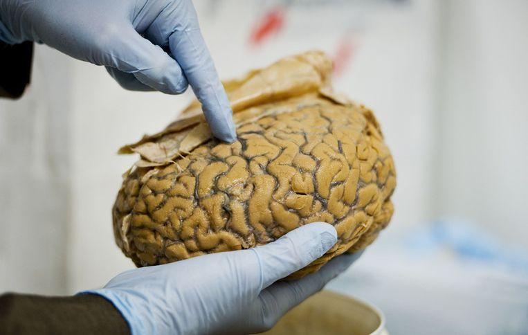Extreem Mannelijk Brein Als Oorzaak Van Autisme Is Onzin
