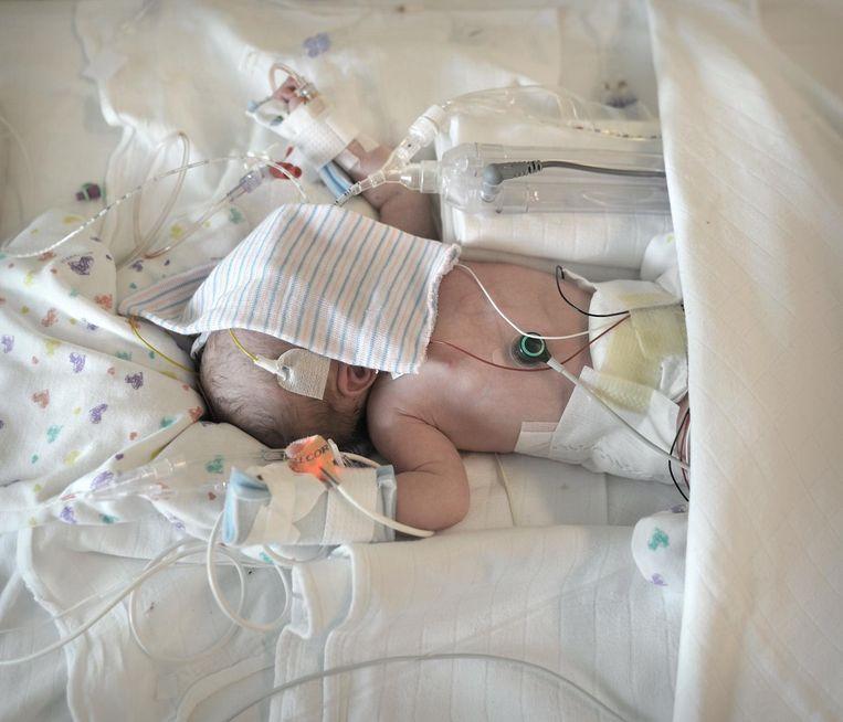 Een te vroeg geboren kindje op de afdeling neonatologie van het AMC. Beeld Joost van den Broek