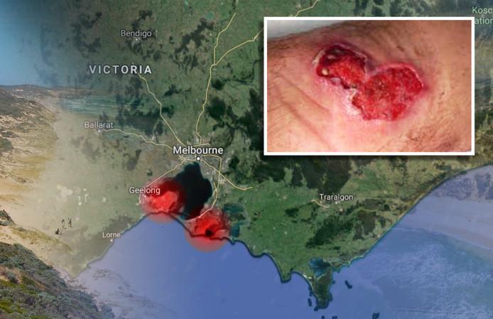De besmetting met de Mycobacterium ulcerans komt vooral voor op de schiereilanden Mornington en Bellarine.