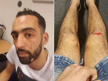 Man (28) in Kanaleneiland mishandeld, volgens slachtoffer homogeweld