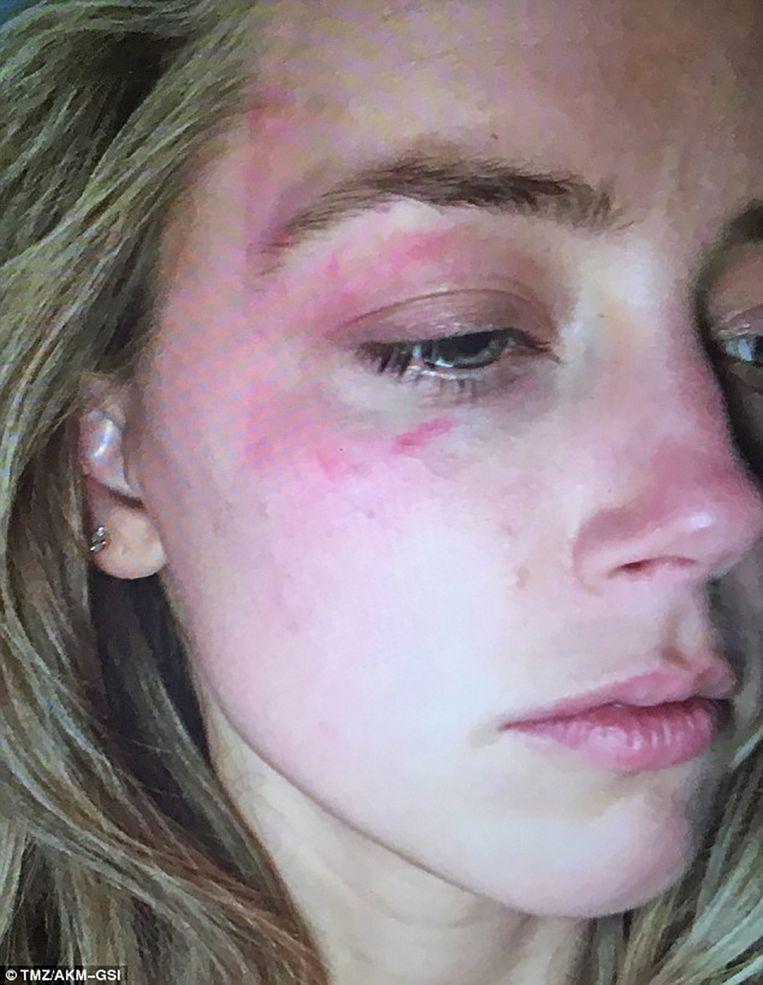 TMZ publiceert deze foto van Amber Heard, die ze binnenbracht bij de rechtbank. Daarop is te zien hoe erg ze eraan toe was nadat Depp een gsm naar haar gezicht gooide.