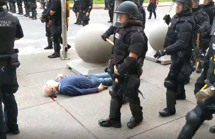 L'homme de 75 ans s'est cogné la tête sur le sol après avoir été poussé par les policiers.