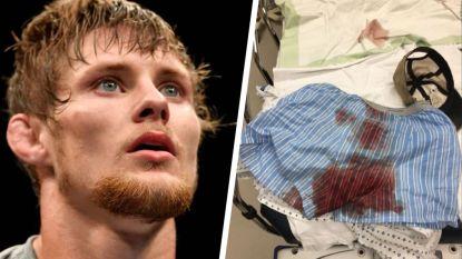 UFC-vechter steekt boor in boxershort, maar dan gaat het mis. Het gevolg moet een van de meest verschrikkelijke arbeidsongevallen ooit zijn