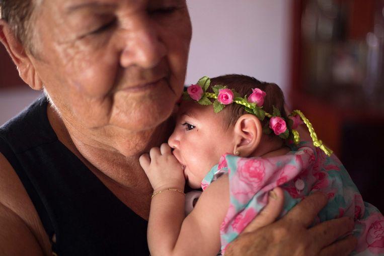 Een baby besmet met het zika-virus.