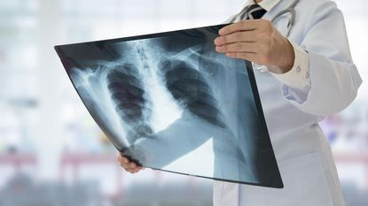 Ex-roker met zware hoest gaat naar de dokter. Het resultaat van het onderzoek is verbijsterend