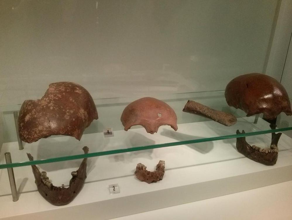 Fragmenten van gevonden schedels. Eén ervan is tijdens de veldslag van Caesar met een Romeinse werpspeer is doorboord.