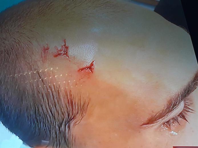 De hoofdwond bij Bas Dost.