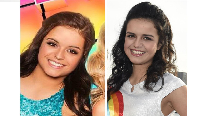 Links: Marthes nieuwe glimlach. Rechts: haar normale blik.