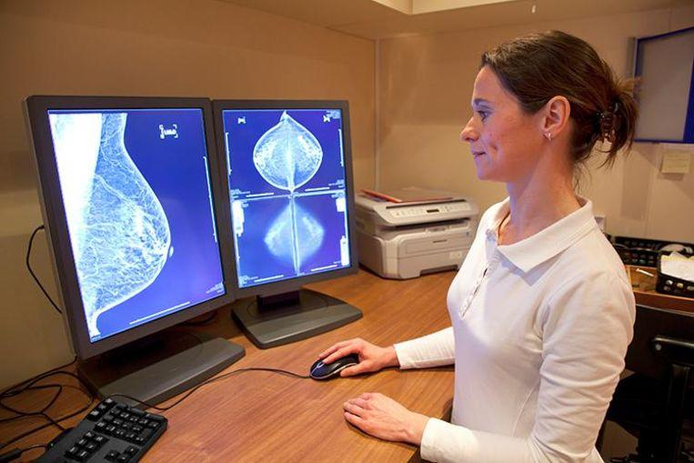 Een radiologe analyseert een mammogram.