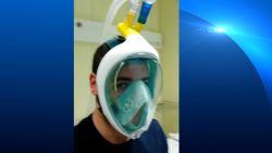 Brussels ziekenhuis bestelt duikmaskers om te gebruiken als beademingstoestel